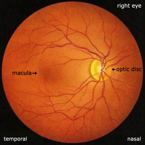 Dermatology Pictures for the CK Exam-retina_macula_disc4.jpg