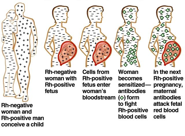 Rh negative Mom-Rh positive Baby-rhstory.jpg