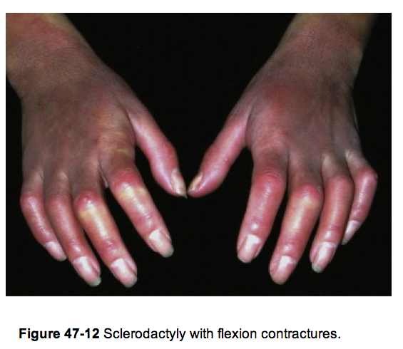 The hand in different diseases-sclerodactyly.png