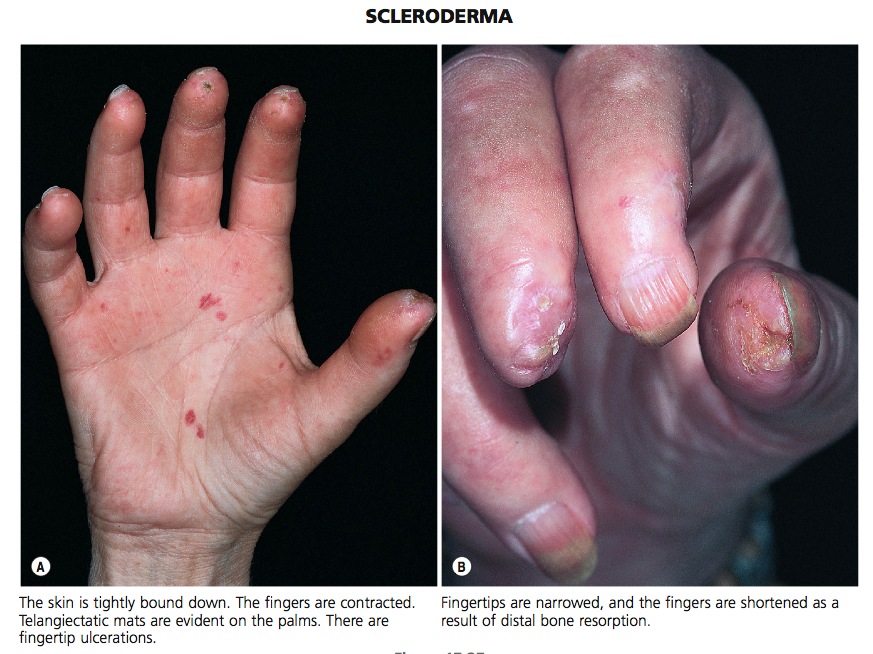 The hand in different diseases-scleroderma.png