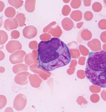 Can you diagnose this blood film picture?-screen-shot-2011-05-28-7.57.33-pm.png