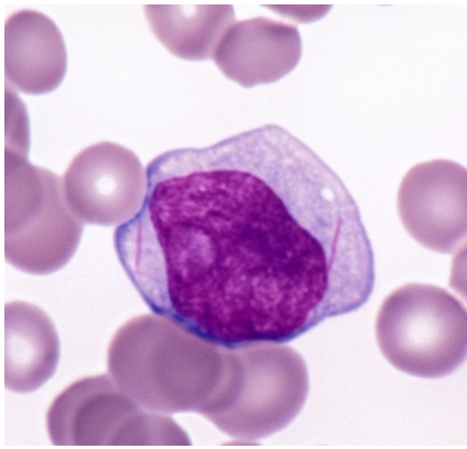 Can you diagnose this blood film picture?-screen-shot-2011-05-28-9.18.41-pm.png