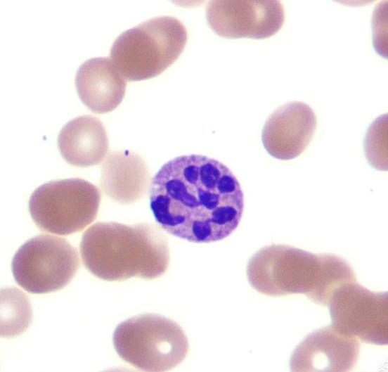 Can you diagnose this blood film picture #2?-screen-shot-2011-05-29-4.20.48-pm.png