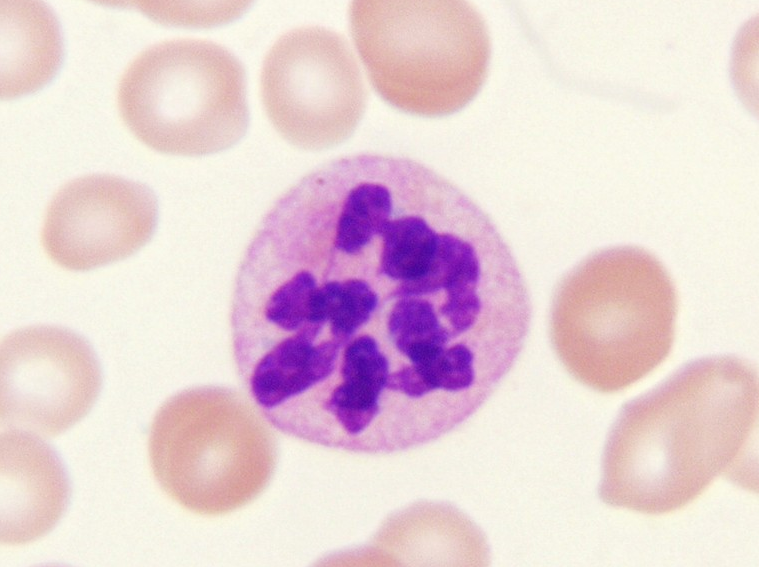 Can you diagnose this blood film picture #2?-screen-shot-2011-05-29-4.22.15-pm.png