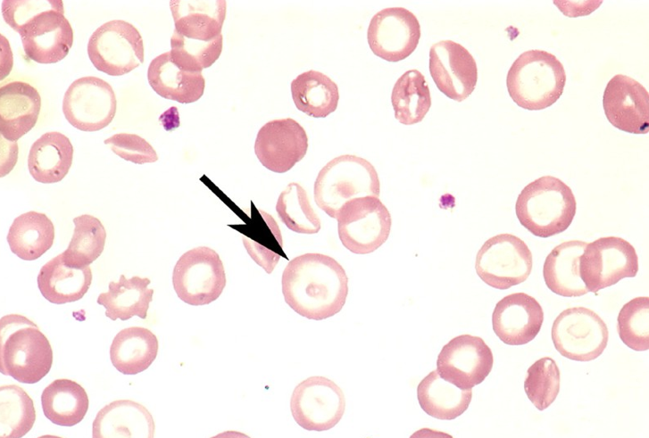 Can you diagnose this blood film picture #3?-screen-shot-2011-05-30-1.03.04-pm.png