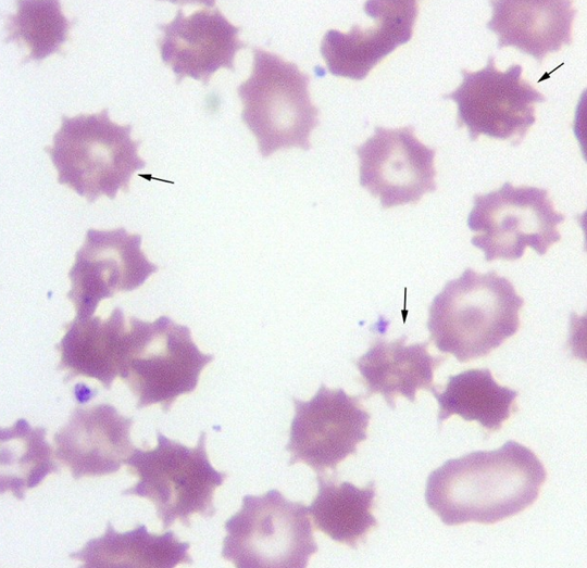 Can you diagnose this blood film picture #3?-screen-shot-2011-05-30-2.19.22-pm.png