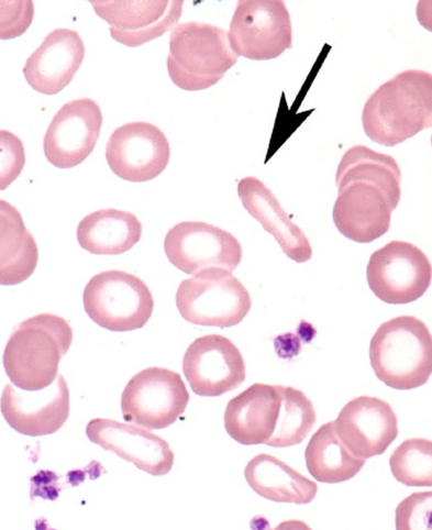 Can you diagnose this blood film picture #3?-screen-shot-2011-05-30-2.20.55-pm.png