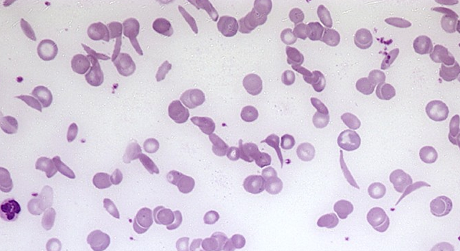 Can you diagnose this blood film picture #3?-screen-shot-2011-05-30-2.48.54-pm.png