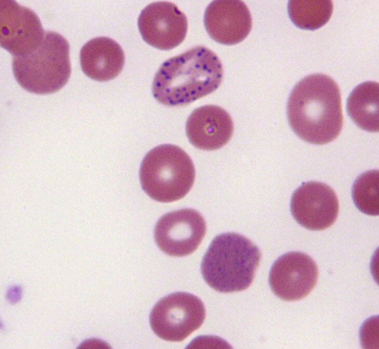 Can you diagnose this blood film picture #4?-screen-shot-2011-05-31-7.22.26-pm.png