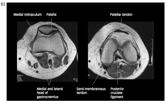High Yield X-rays and CT Images List-screen-shot-2011-06-08-8.26.25-pm.png