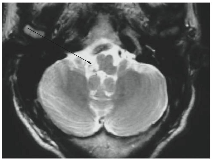 56 y/o man with vertigo and dysphagia-screen-shot-2011-06-17-10.16.53-pm.png