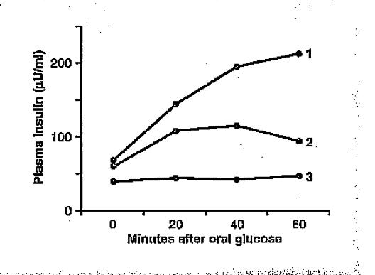 Insulin versus Glucose curve!-screen-shot-2011-06-27-11.34.09-pm.png