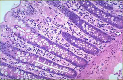 Identify the Histo Slide-screen-shot-2011-08-09-2.41.12-pm.png