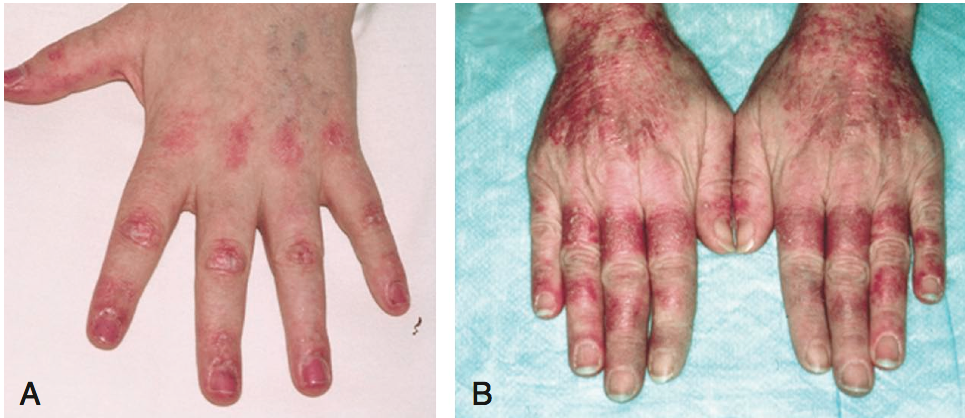 The hand in different diseases-screen-shot-2011-11-15-10.08.40-pm.png