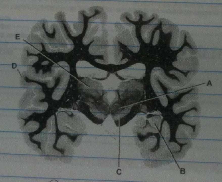 Neuro cross section image-screen-shot-2013-02-14-7.46.20-pm.png