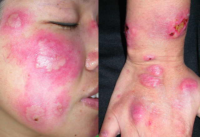 Dermatology Pictures for the CK Exam-screen-shot-2015-09-03-6.09.00-pm.png