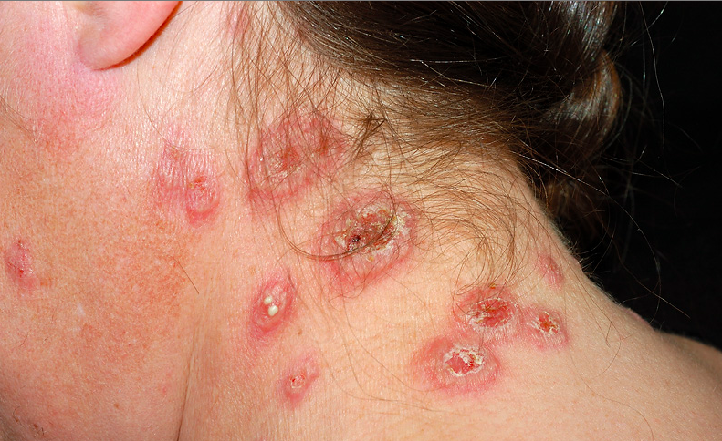Dermatology Pictures for the CK Exam-screen-shot-2015-09-03-6.09.16-pm.png