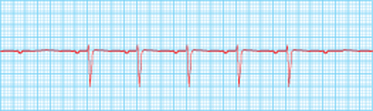 High Yield Electrocardiographs for the Step 2 CK Exam-second-degree-2-ecg.jpg
