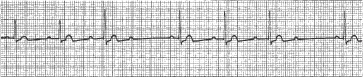 High Yield Electrocardiographs for the Step 2 CK Exam-second-degree-av-block-ecg.jpg