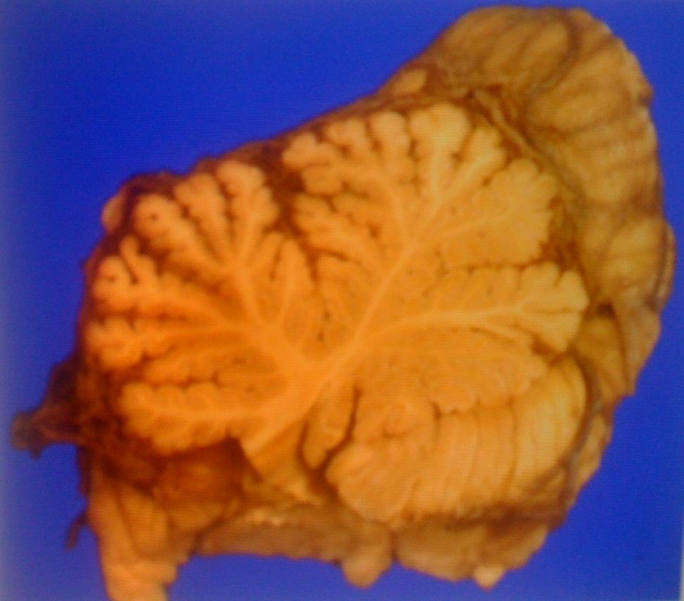 Cerebellum Autopsy Question-securedownload.jpg