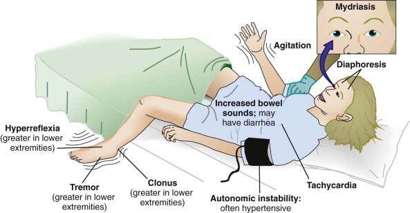 Headache, Diarrhea, Hallucinations, Hypertension, and Tremor!-serotonin-syndrome.jpeg