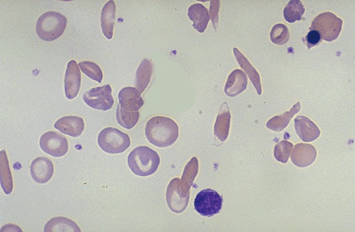 High Yield Blood Films for your Step 2 CK!-sickle-cell.jpg