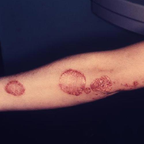 Diagnose this skin lesion-skin-lesion.jpg