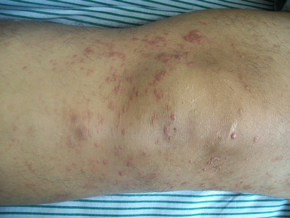 dermal infiltrates of atypical CD4+ T cells with cerebriform nuclei-skin-rash.jpg