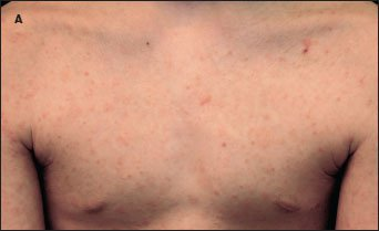 Match the dermatologic images to their diagnoses!-skin1.jpg