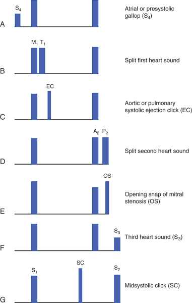The mechanism of splitted second heart sound during inspiration!-sounds.jpeg