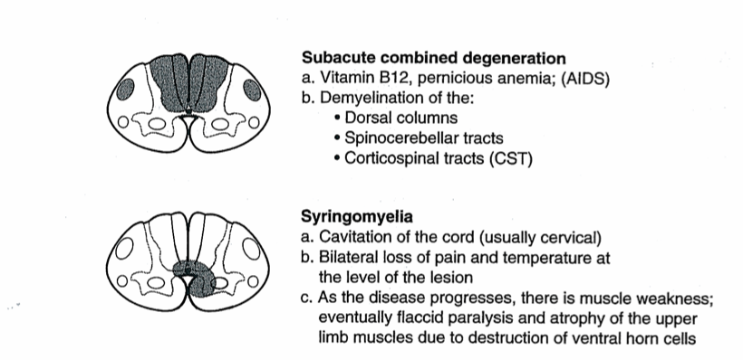 Spinal cord cross section - lesion sites-spine2.png