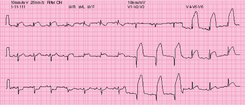 High Yield Electrocardiographs for the Step 2 CK Exam-st-elevation-ecg.jpg