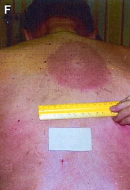 Dermatology Pictures for the CK Exam-starirash.jpg