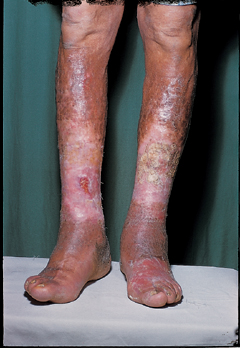 Dermatology Pictures for the CK Exam-stasis-dermatitis.jpg