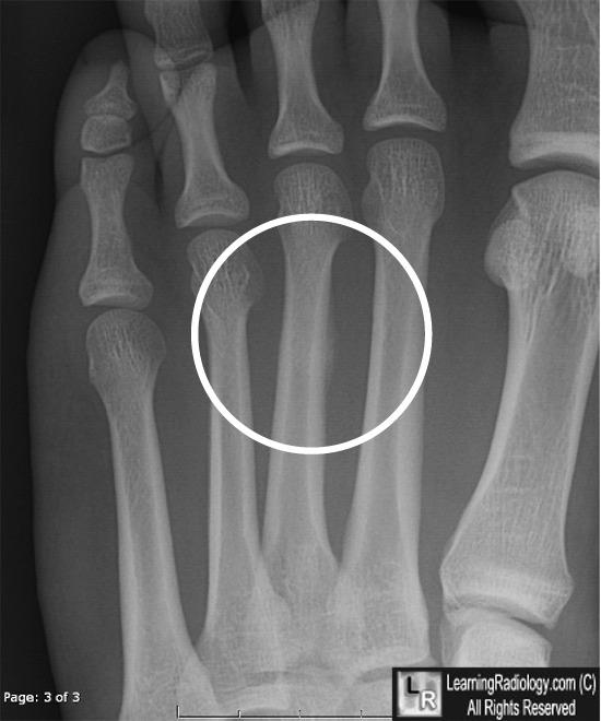 Radiology for CK-stress-frat.jpg