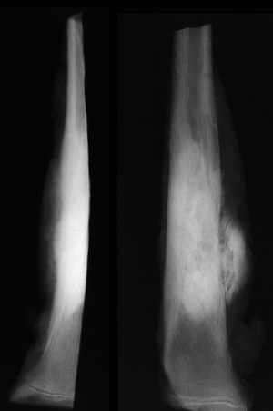 USMLE Step 1 Radiology buzzwords-sunburst-osteosarcoma.jpg