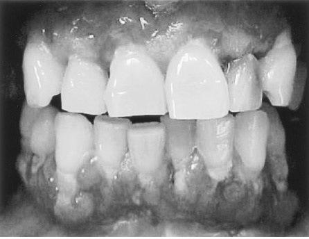 Multiple Oral Ulcers and Nikolsky Positive!-teeth.jpg