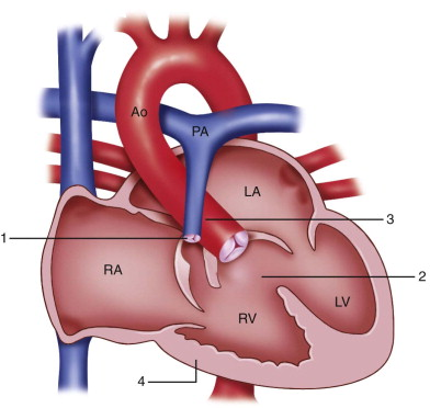 Essentials of Radiology - Cardiovascular System-tetralogy-fallot.jpeg