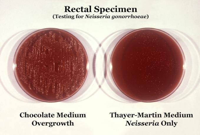 High Yield Microbiology Growth Media/Agars for USMLE Step 1-thayer-martin.jpg