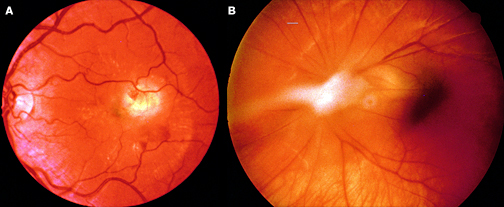 Ophthalmological high yield images-toxocariasis_eye_findings.jpg