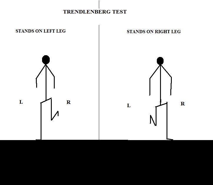 Anatomy Q: Nerve affected-trendlenberg.jpg