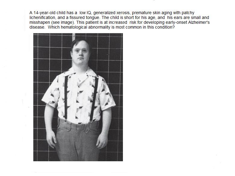 Trisomy 21 Hematogical Abnormality-trisomy-21.png