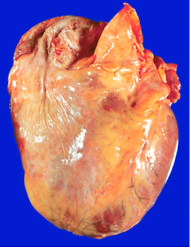 Heart Gross Anatomy/Pathology-untitled1.jpg