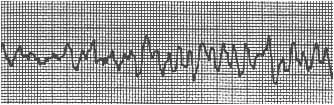 arrythmia-v2.jpg