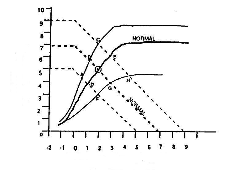 Cardiac Output - Venous Return Curves-venousreturncurve.jpg