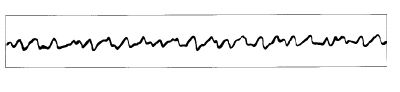 High Yield Electrocardiographs for the Step 2 CK Exam-ventricular-fibrillation-ekg.jpg