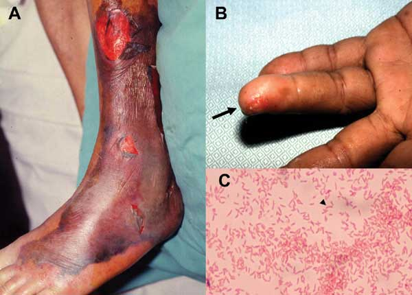 Dermatology Pictures for the CK Exam-vibrio-vulnificus-skin-injuries.jpg