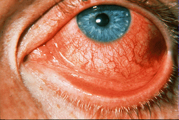 High Yield Images for Step 2 CK-viral_conjunctivitis.jpg