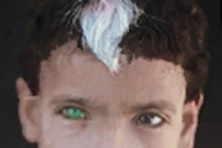 White forelock?-waardenberg-syndrome.jpg