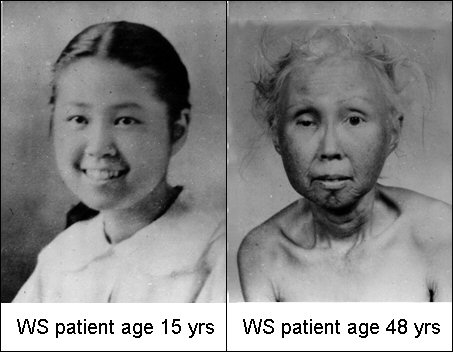 Early age atherosclerosis and graying of hair!-werner.jpg